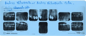Andres' dental records